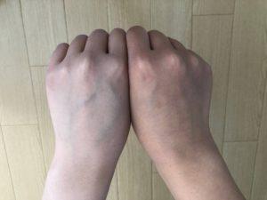 ウィキッドスノーホワイトクリームの症例画像です。右がビフォー、左手がアフターです。